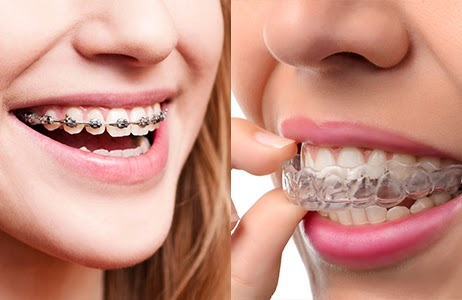 Transform Your Smile With Damon Braces or Invisalign!